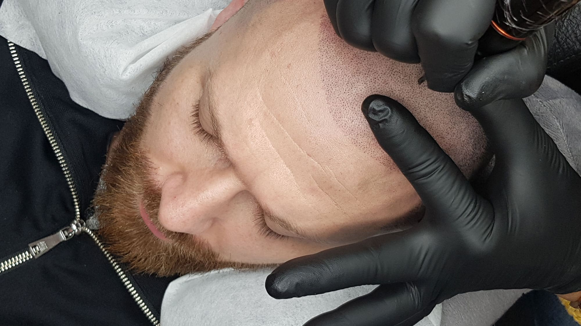 scalp micropigmentation portugal